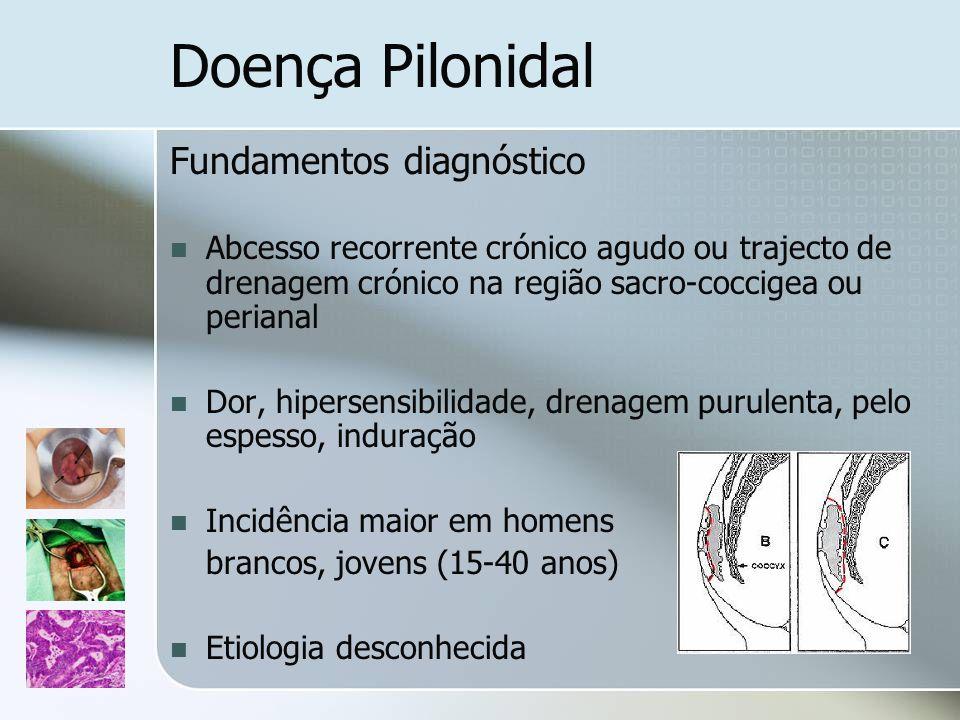 Doença Pilonidal Fundamentos diagnóstico Abcesso recorrente crónico agudo ou trajecto de drenagem crónico na região sacro-coccigea ou perianal Dor, hi