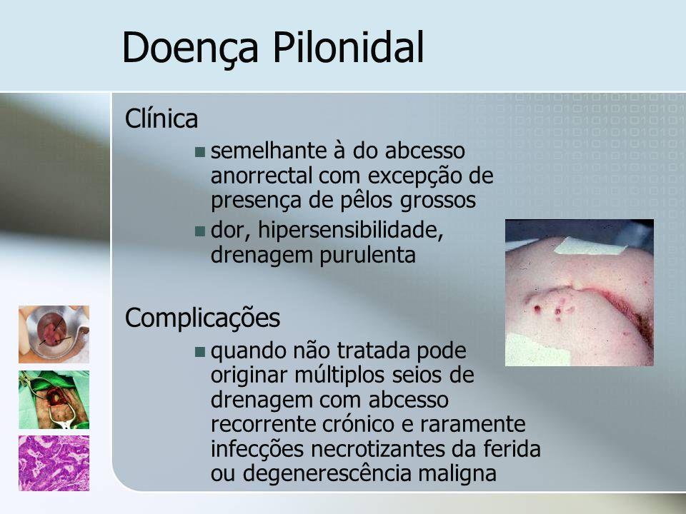 Doença Pilonidal Clínica semelhante à do abcesso anorrectal com excepção de presença de pêlos grossos dor, hipersensibilidade, drenagem purulenta Comp