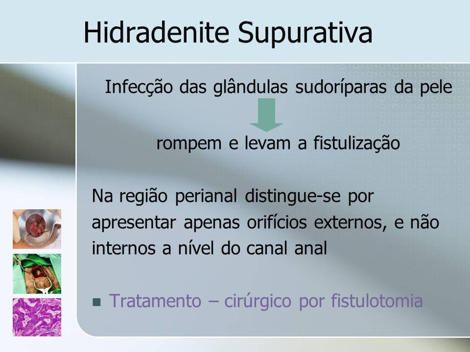 Hidradenite Supurativa Infecção das glândulas sudoríparas da pele rompem e levam a fistulização Na região perianal distingue-se por apresentar apenas