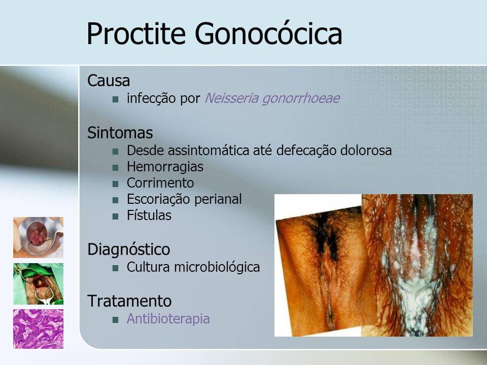 Proctite Gonocócica Causa infecção por Neisseria gonorrhoeae Sintomas Desde assintomática até defecação dolorosa Hemorragias Corrimento Escoriação per