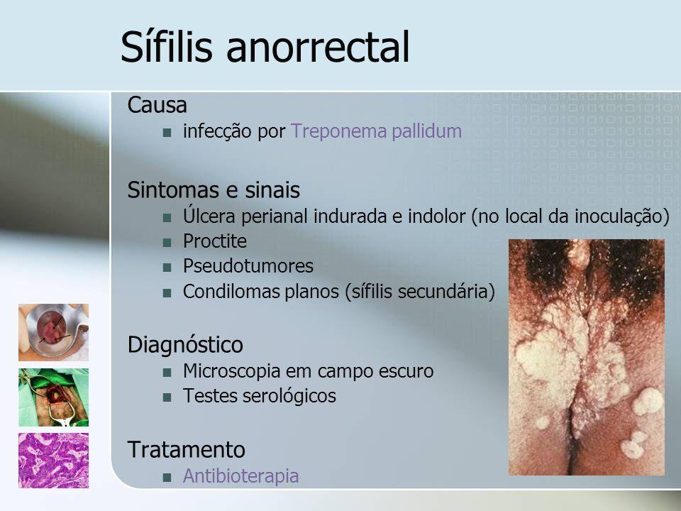 Sífilis anorrectal Causa infecção por Treponema pallidum Sintomas e sinais Úlcera perianal indurada e indolor (no local da inoculação) Proctite Pseudo