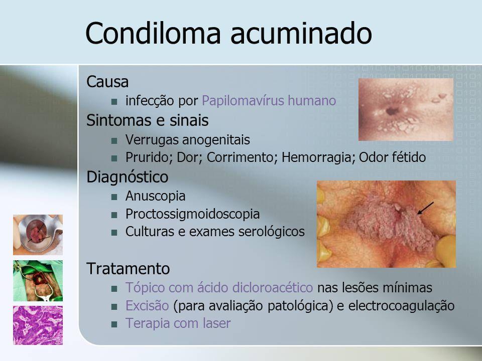 Condiloma acuminado Causa infecção por Papilomavírus humano Sintomas e sinais Verrugas anogenitais Prurido; Dor; Corrimento; Hemorragia; Odor fétido D
