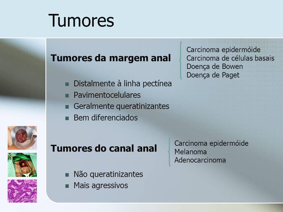 Tumores da margem anal Distalmente à linha pectínea Pavimentocelulares Geralmente queratinizantes Bem diferenciados Tumores do canal anal Não queratin