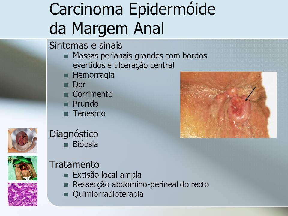 Carcinoma Epidermóide da Margem Anal Sintomas e sinais Massas perianais grandes com bordos evertidos e ulceração central Hemorragia Dor Corrimento Pru