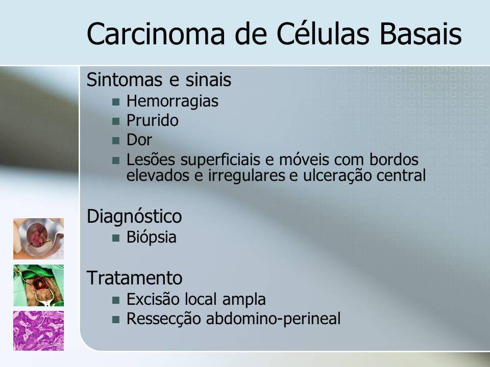 Carcinoma de Células Basais Sintomas e sinais Hemorragias Prurido Dor Lesões superficiais e móveis com bordos elevados e irregulares e ulceração centr
