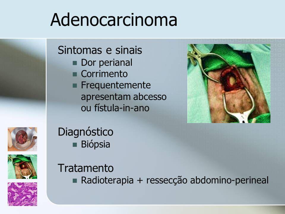 Adenocarcinoma Sintomas e sinais Dor perianal Corrimento Frequentemente apresentam abcesso ou fístula-in-ano Diagnóstico Biópsia Tratamento Radioterap