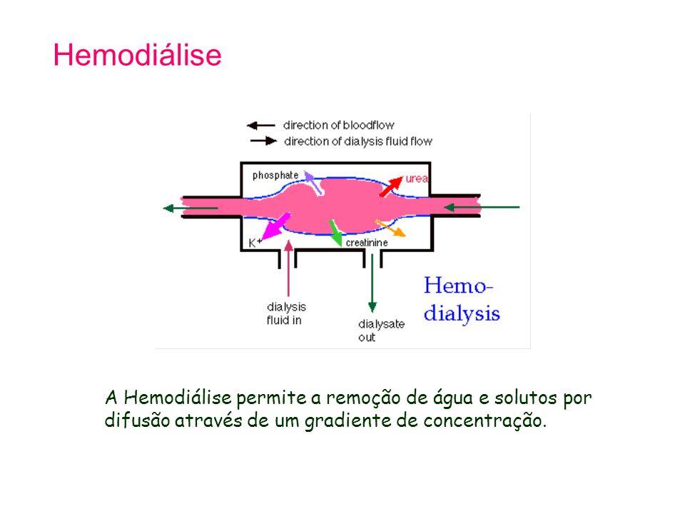 Hemodiálise A Hemodiálise permite a remoção de água e solutos por difusão através de um gradiente de concentração.