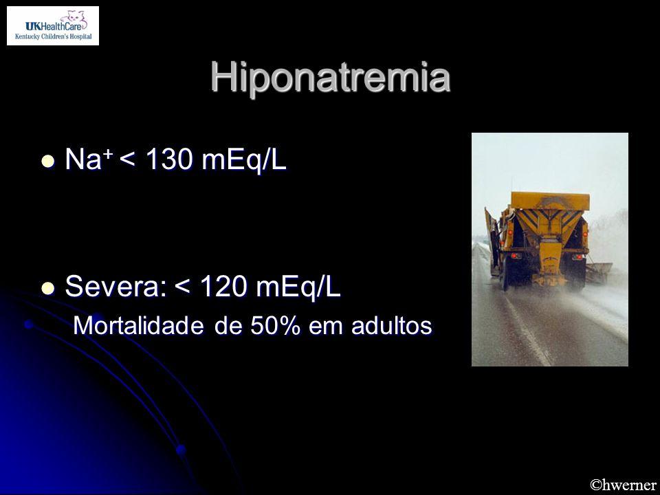 ©hwerner Hiponatremia Na + < 130 mEq/L Na + < 130 mEq/L Severa: < 120 mEq/L Severa: < 120 mEq/L Mortalidade de 50% em adultos