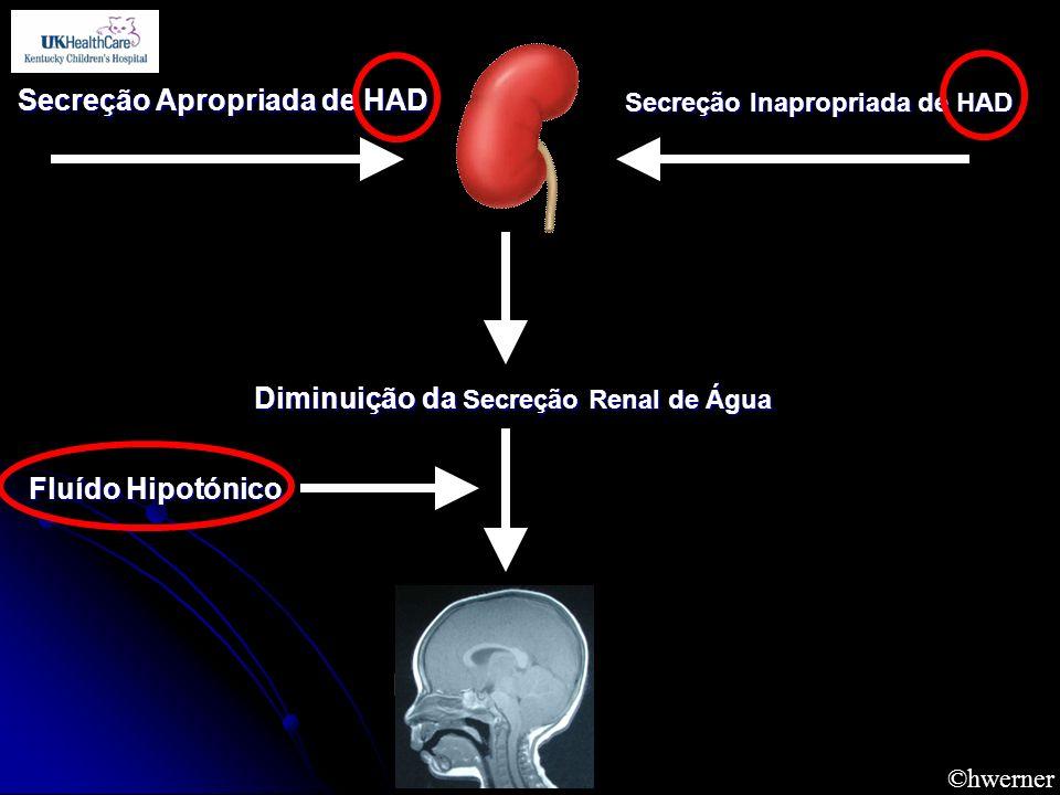 ©hwerner Secreção Apropriada de HAD Secreção Inapropriada de HAD Diminuição da Secreção Renal de Água Fluído Hipotónico Hyponatremia