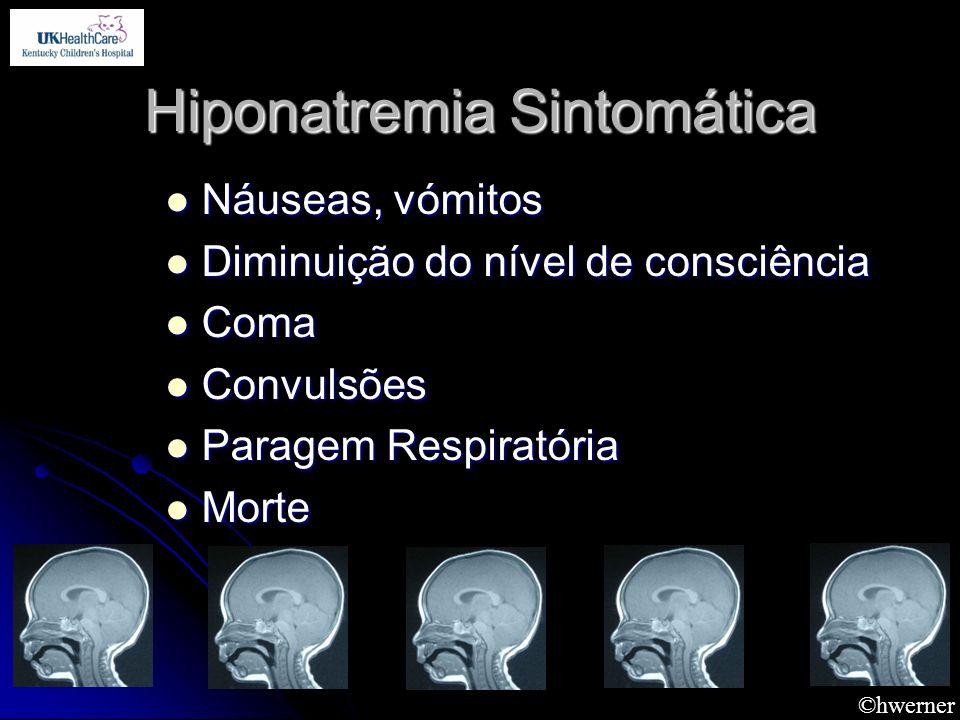 ©hwerner Hiponatremia Sintomática Náuseas, vómitos Náuseas, vómitos Diminuição do nível de consciência Diminuição do nível de consciência Coma Coma Co
