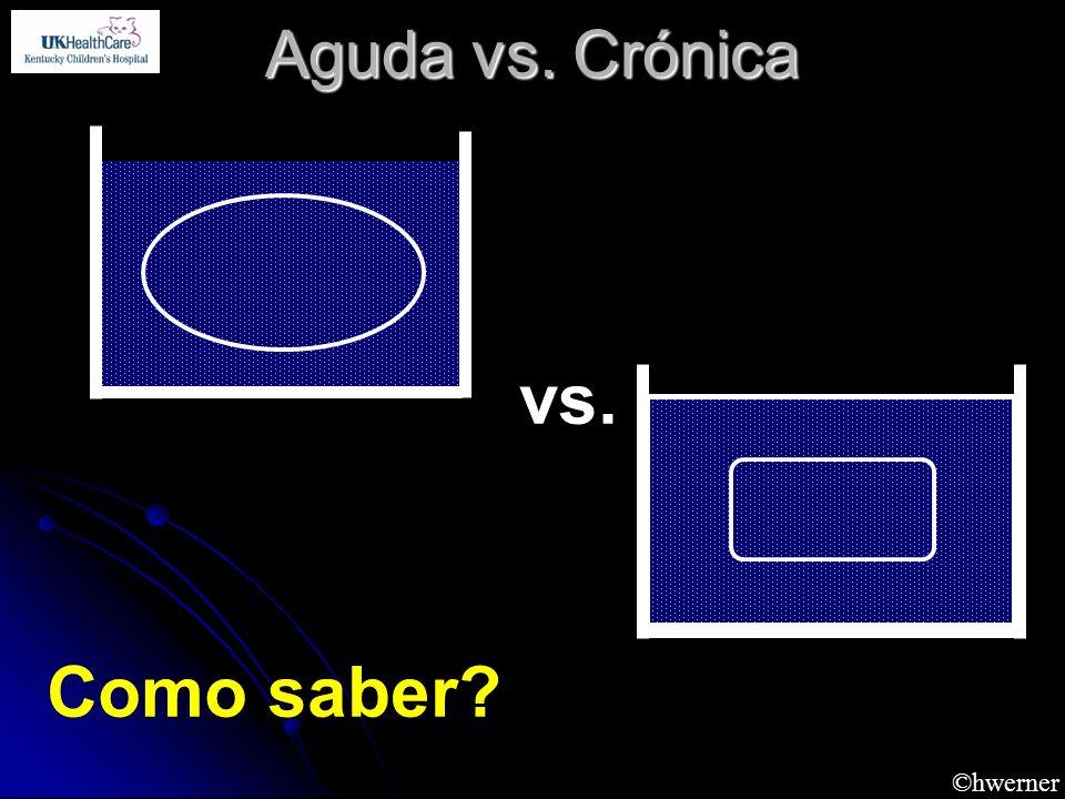 ©hwerner Aguda vs. Crónica vs. Como saber?
