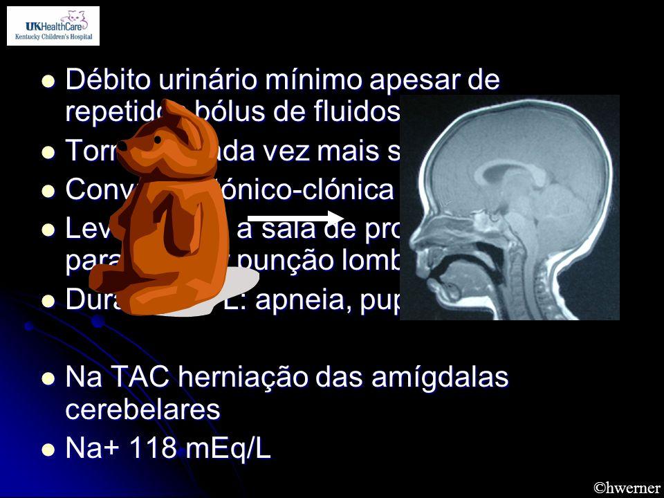 Débito urinário mínimo apesar de repetidos bólus de fluidos Débito urinário mínimo apesar de repetidos bólus de fluidos Torna-se cada vez mais sonolen