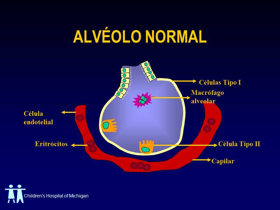 Childrens Hospital of Michigan ALVÉOLO NORMAL Células Tipo I Célula endotelial Eritrócitos Capilar Macrófago alveolar Célula Tipo II