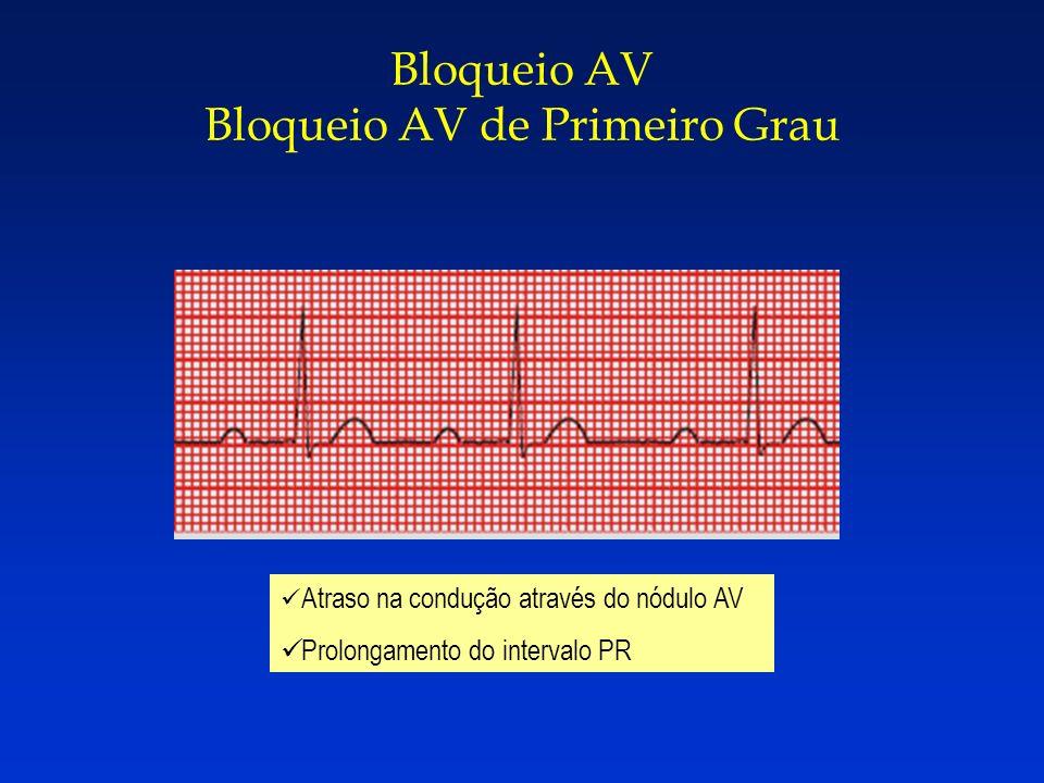Bloqueio AV Bloqueio AV de Primeiro Grau Atraso na condução através do nódulo AV Prolongamento do intervalo PR