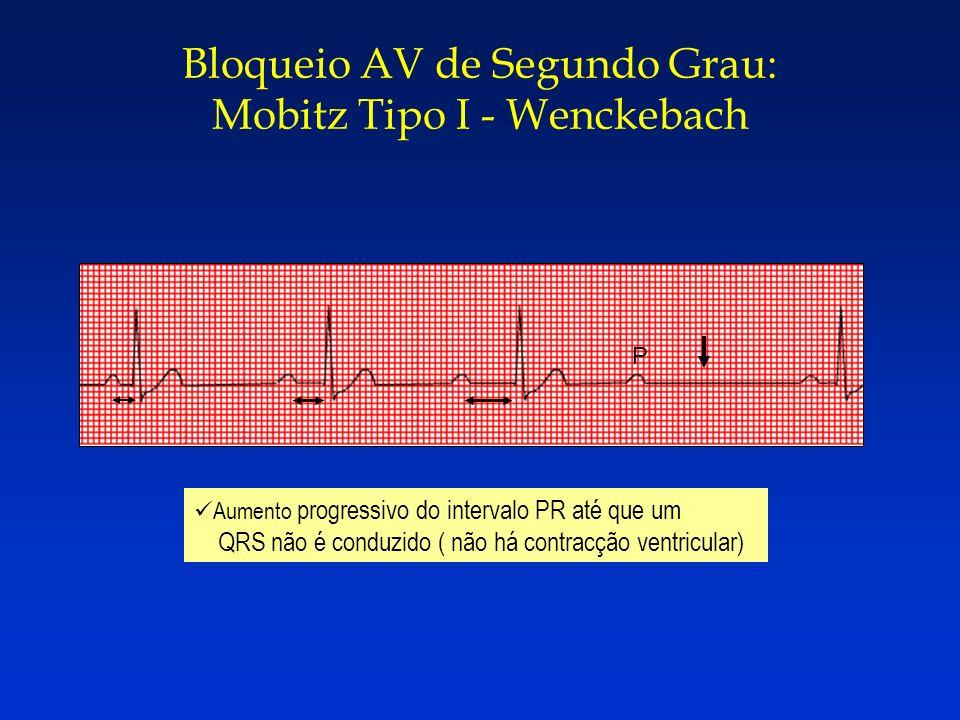 Bloqueio AV de Segundo Grau: Mobitz Tipo I - Wenckebach Aumento progressivo do intervalo PR até que um QRS não é conduzido ( não há contracção ventric