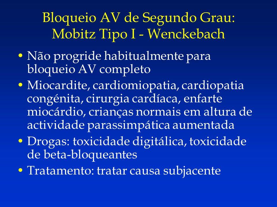 Não progride habitualmente para bloqueio AV completo Miocardite, cardiomiopatia, cardiopatia congénita, cirurgia cardíaca, enfarte miocárdio, crianças