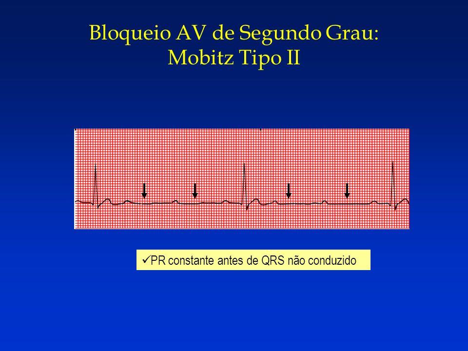 PR constante antes de QRS não conduzido Bloqueio AV de Segundo Grau: Mobitz Tipo II