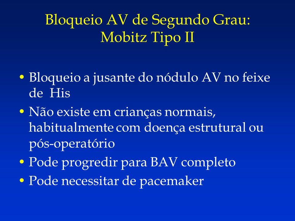 Bloqueio a jusante do nódulo AV no feixe de His Não existe em crianças normais, habitualmente com doença estrutural ou pós-operatório Pode progredir p