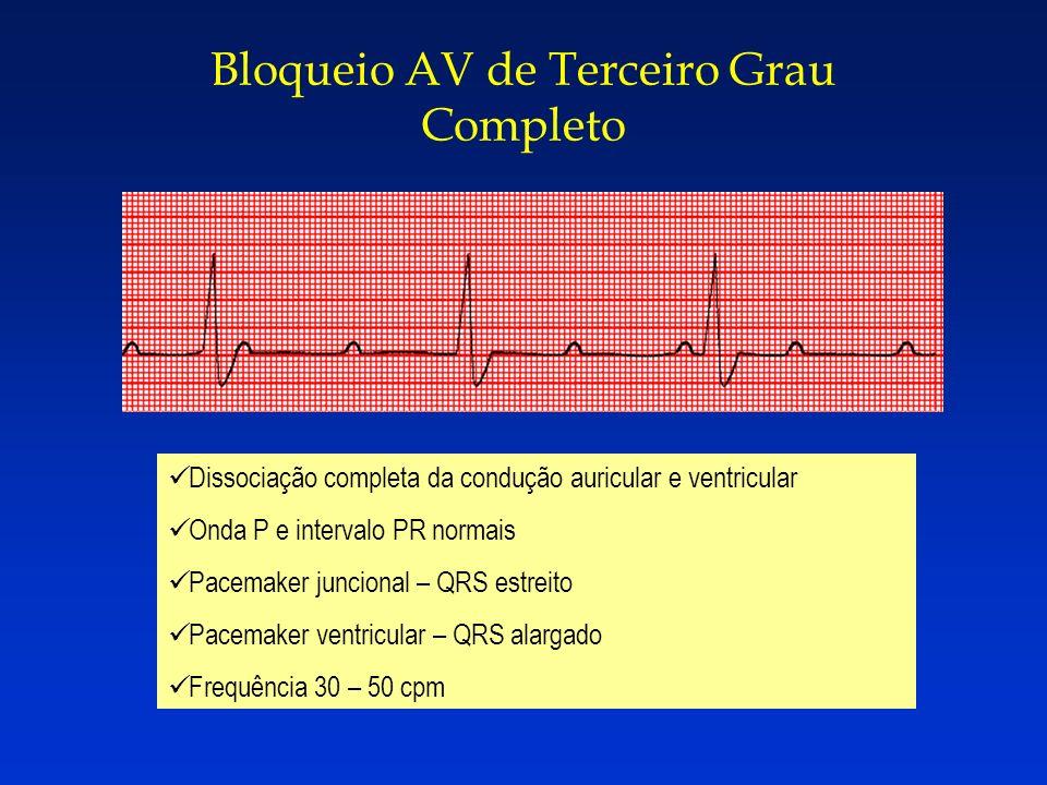 Bloqueio AV de Terceiro Grau Completo Dissociação completa da condução auricular e ventricular Onda P e intervalo PR normais Pacemaker juncional – QRS