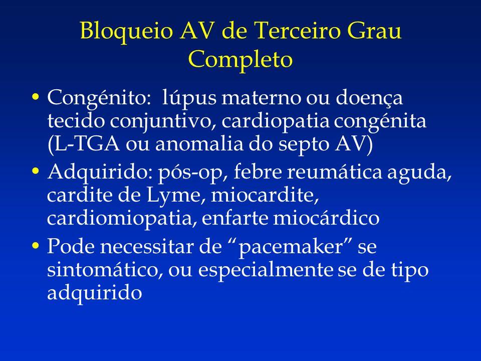 Congénito: lúpus materno ou doença tecido conjuntivo, cardiopatia congénita (L-TGA ou anomalia do septo AV) Adquirido: pós-op, febre reumática aguda,