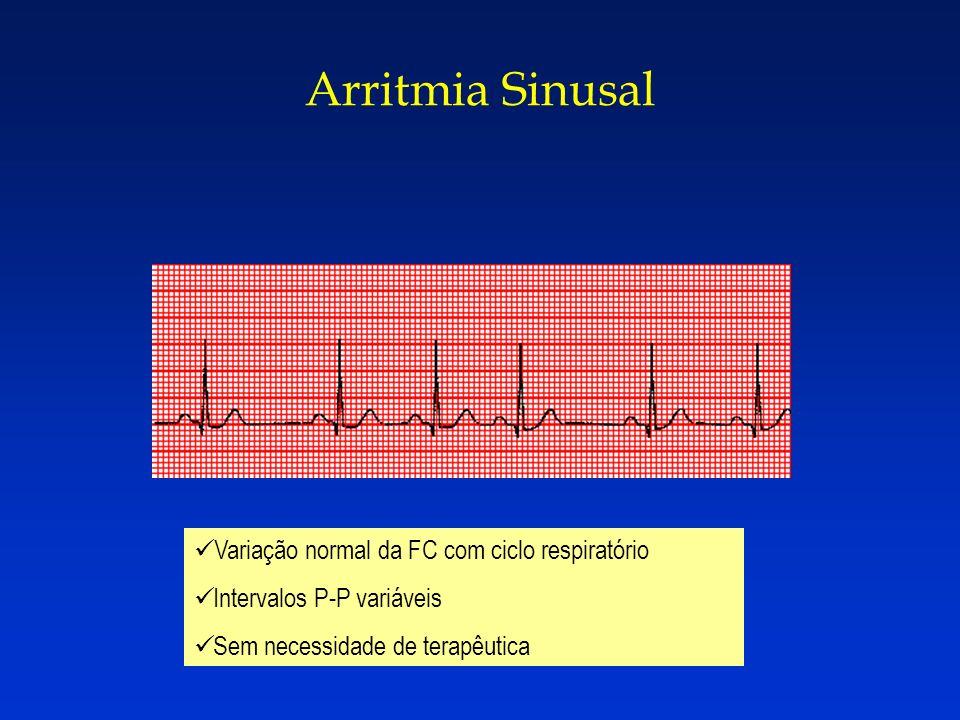 Arritmia Sinusal Variação normal da FC com ciclo respiratório Intervalos P-P variáveis Sem necessidade de terapêutica