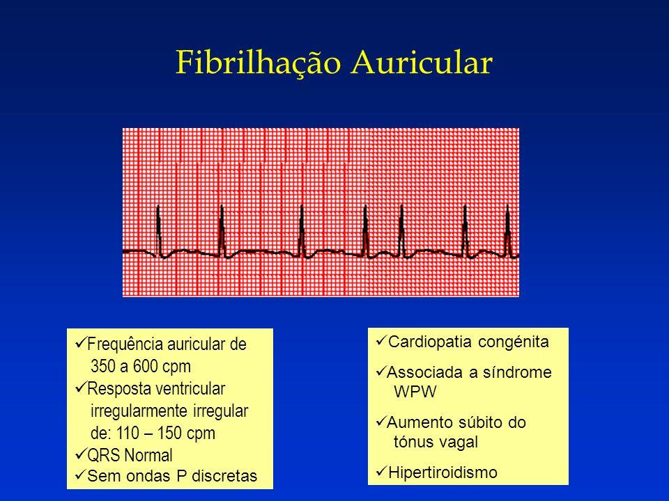 Fibrilhação Auricular Frequência auricular de 350 a 600 cpm Resposta ventricular irregularmente irregular de: 110 – 150 cpm QRS Normal Sem ondas P dis
