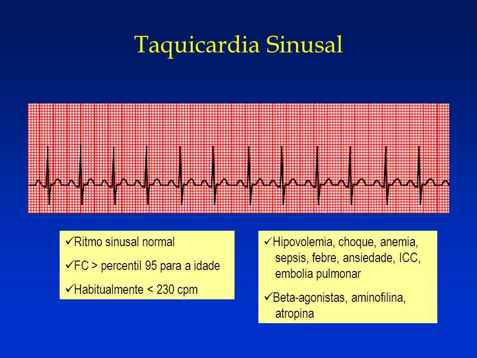 Taquicardia Sinusal Ritmo sinusal normal FC > percentil 95 para a idade Habitualmente < 230 cpm Hipovolemia, choque, anemia, sepsis, febre, ansiedade,