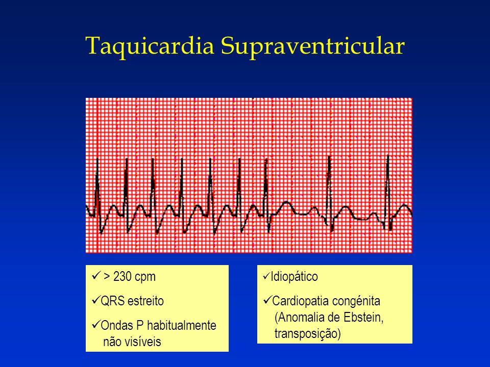 Taquicardia Supraventricular > 230 cpm QRS estreito Ondas P habitualmente não visíveis Idiopático Cardiopatia congénita (Anomalia de Ebstein, transpos