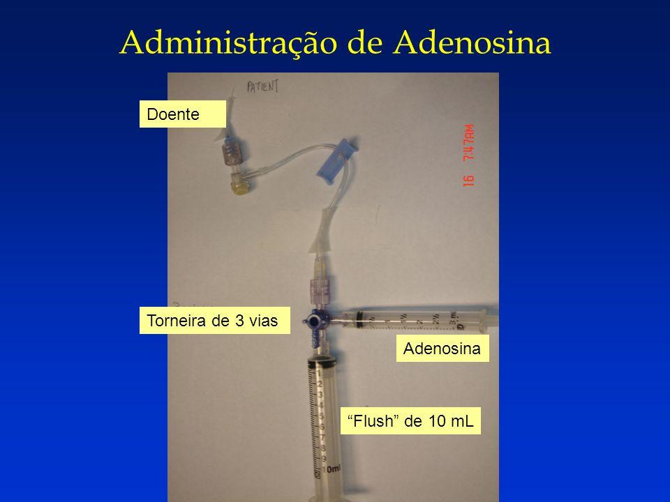 Administração de Adenosina Doente Torneira de 3 vias Adenosina Flush de 10 mL