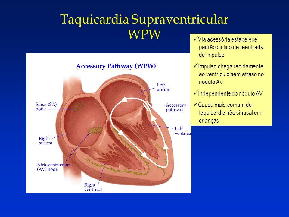 Taquicardia Supraventricular WPW Via acessória estabelece padrão cíclico de reentrada de impulso Impulso chega rapidamente ao ventrículo sem atraso no