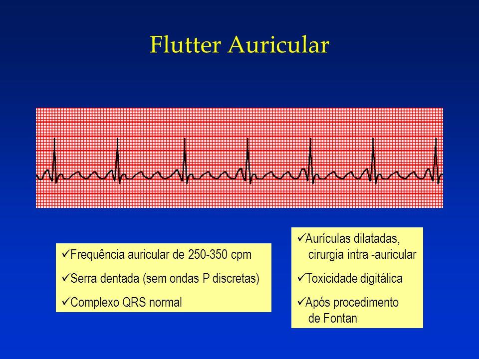 Flutter Auricular Frequência auricular de 250-350 cpm Serra dentada (sem ondas P discretas) Complexo QRS normal Aurículas dilatadas, cirurgia intra -a