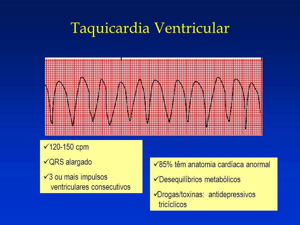 Taquicardia Ventricular 120-150 cpm QRS alargado 3 ou mais impulsos ventriculares consecutivos 85% têm anatomia cardíaca anormal Desequilíbrios metabó