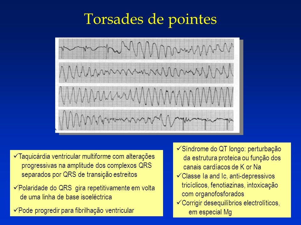 Torsades de pointes Taquicárdia ventricular multiforme com alterações progressivas na amplitude dos complexos QRS separados por QRS de transição estre