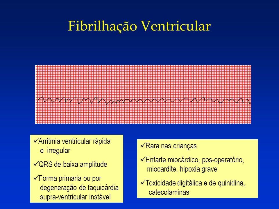 Fibrilhação Ventricular Arritmia ventricular rápida e irregular QRS de baixa amplitude Forma primaria ou por degeneração de taquicárdia supra-ventricu