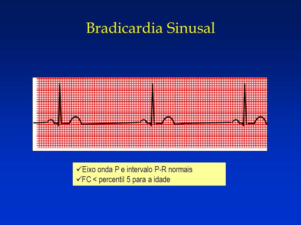 Bradicardia Sinusal Eixo onda P e intervalo P-R normais FC < percentil 5 para a idade