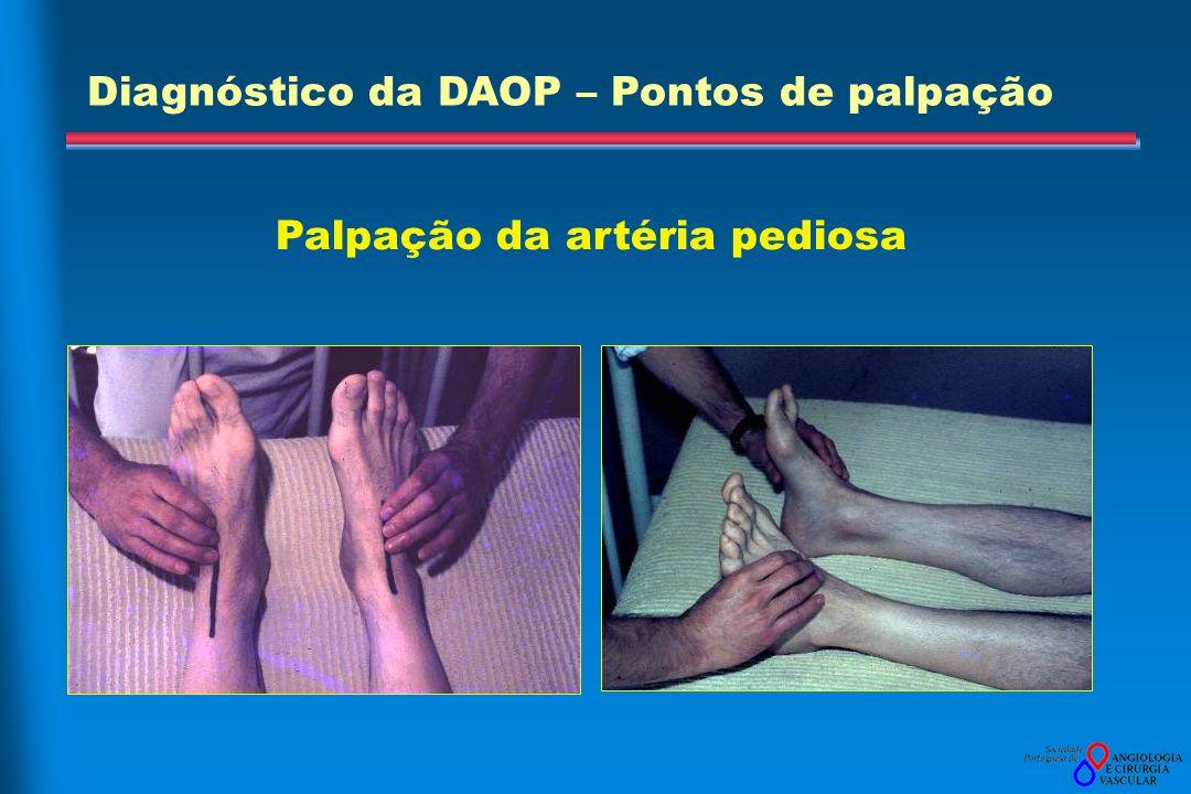 Palpação da artéria pediosa Diagnóstico da DAOP – Pontos de palpação