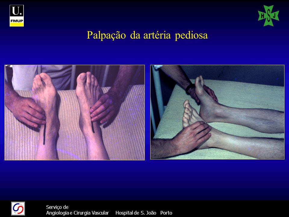 33 Serviço de Angiologia e Cirurgia Vascular Hospital de S. João Porto Palpação da artéria pediosa