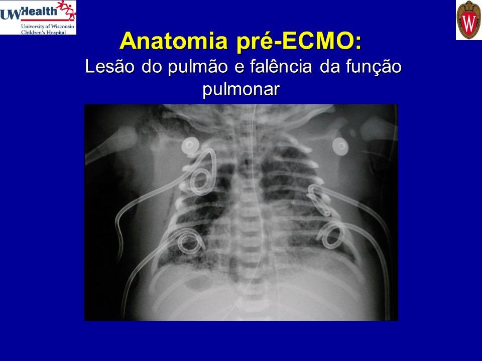 Anatomia pré-ECMO: Lesão do pulmão e falência da função pulmonar