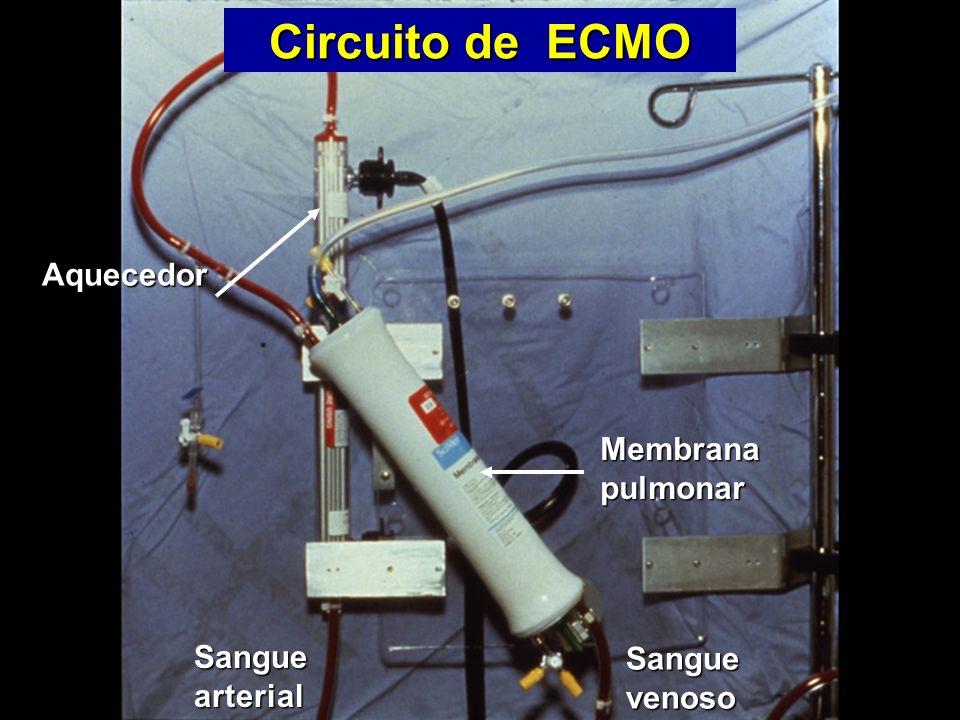 Sangue arterial Sangue venoso Membrana pulmonar Aquecedor Aquecedor Circuito de ECMO