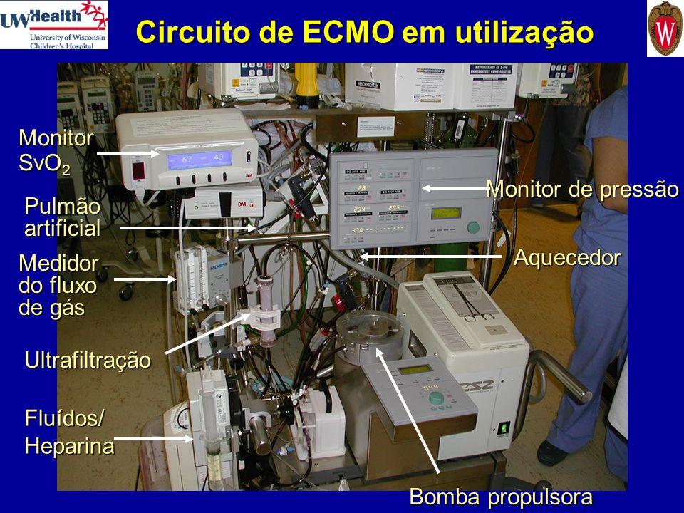 Circuito de ECMO em utilização Monitor SvO 2 Aquecedor Bomba propulsora Monitor de pressão Pulmão artificial Fluídos/Heparina Medidor do fluxo de gás