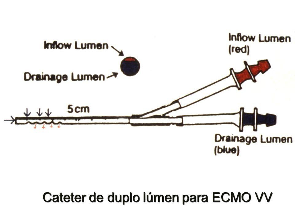 Cateter de duplo lúmen para ECMO VV