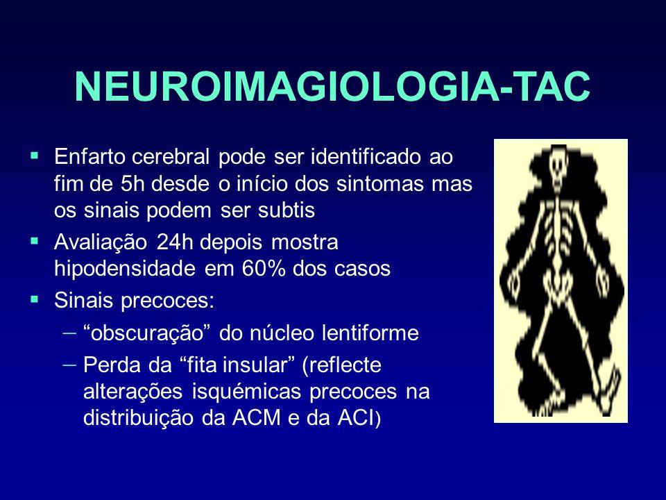 NEUROIMAGIOLOGIA-TAC Enfarto cerebral pode ser identificado ao fim de 5h desde o início dos sintomas mas os sinais podem ser subtis Avaliação 24h depo