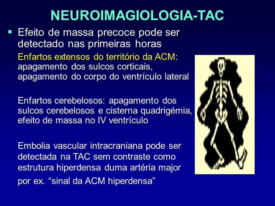 NEUROIMAGIOLOGIA-TAC Efeito de massa precoce pode ser detectado nas primeiras horas Enfartos extensos do território da ACM: apagamento dos sulcos cort
