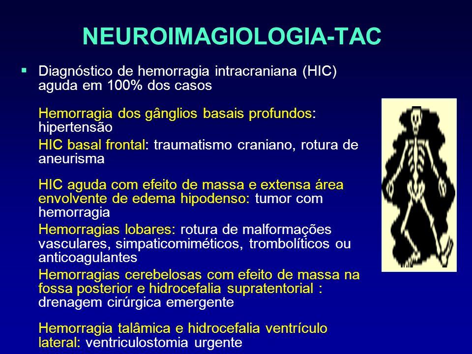 NEUROIMAGIOLOGIA-TAC Diagnóstico de hemorragia intracraniana (HIC) aguda em 100% dos casos Hemorragia dos gânglios basais profundos: hipertensão HIC b