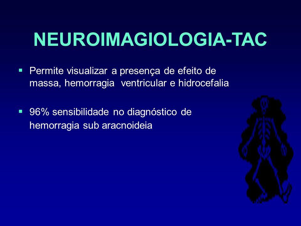 NEUROIMAGIOLOGIA-TAC Permite visualizar a presença de efeito de massa, hemorragia ventricular e hidrocefalia 96% sensibilidade no diagnóstico de hemor