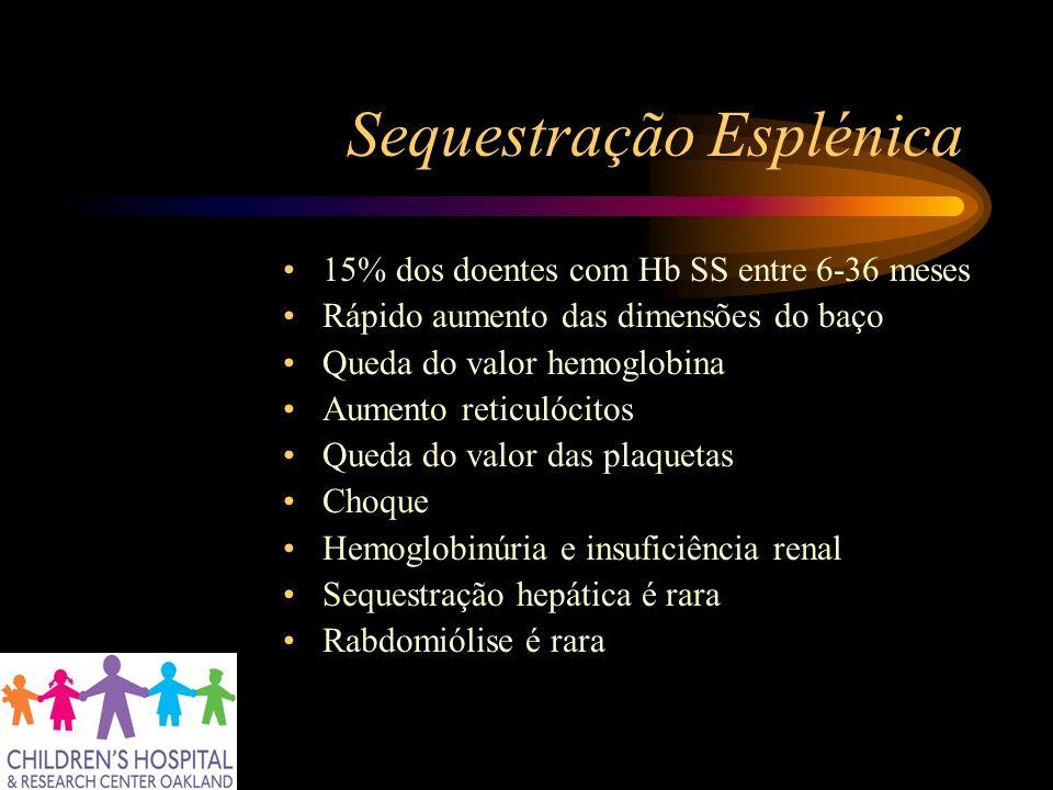 Sequestração Esplénica 15% dos doentes com Hb SS entre 6-36 meses Rápido aumento das dimensões do baço Queda do valor hemoglobina Aumento reticulócito