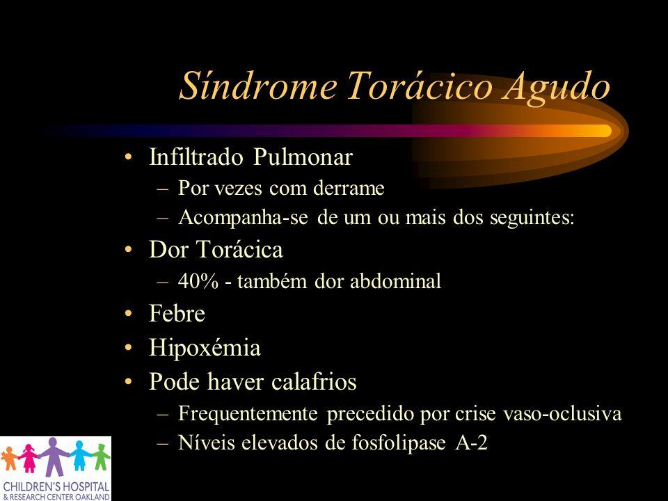 Síndrome Torácico Agudo Infiltrado Pulmonar –Por vezes com derrame –Acompanha-se de um ou mais dos seguintes: Dor Torácica –40% - também dor abdominal