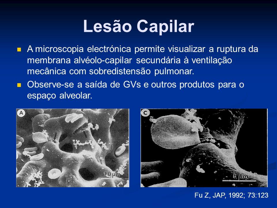 Lesão Capilar Fu Z, JAP, 1992; 73:123 A microscopia electrónica permite visualizar a ruptura da membrana alvéolo-capilar secundária à ventilação mecânica com sobredistensão pulmonar.