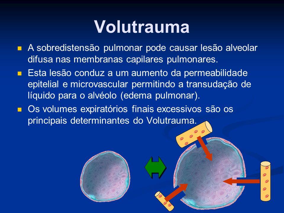Atelectrauma A ventilação mecânica com volumes expiratórios finais pequenos pode ser insuficiente para manter os alvéolos abertos.
