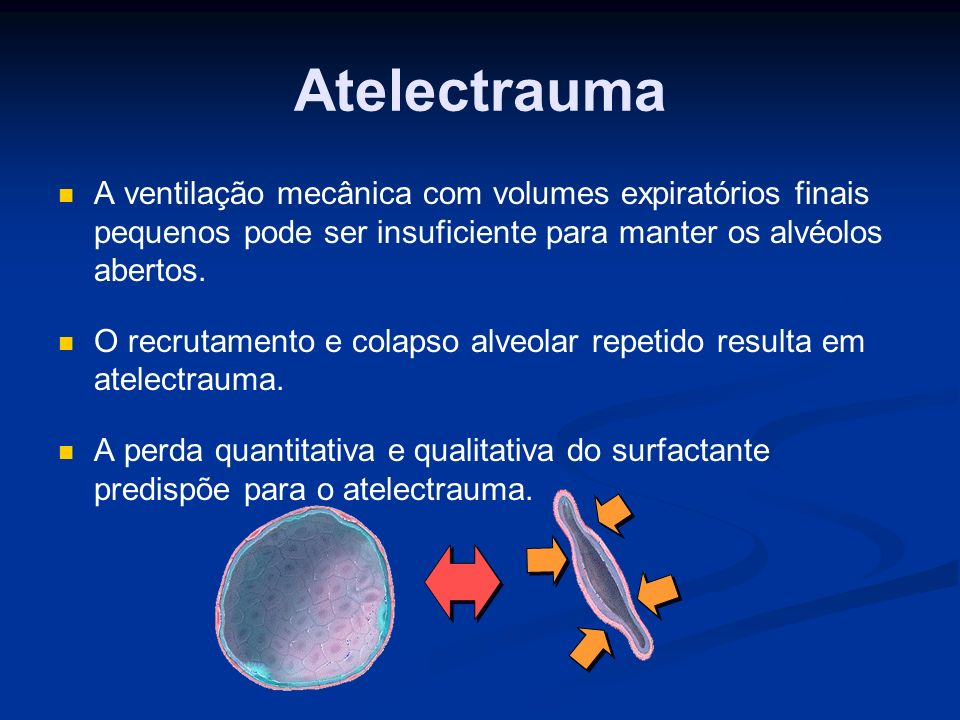 Biotrauma Além das formas mecânicas de lesão, a VPP induz uma resposta inflamatória que perpetua a lesão pulmonar.